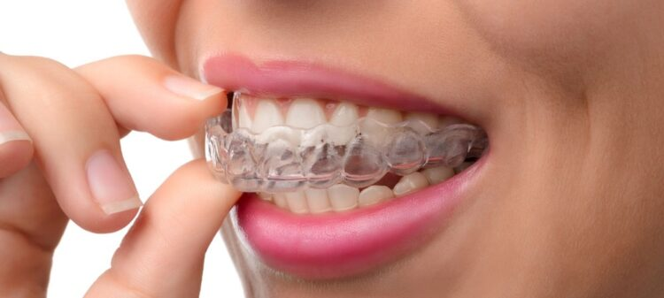 10 Best Invisalign Orthodontists in Dubai (Prices,Reviews,Photos)
